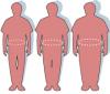 8 tipos de obesidade